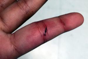 Can you use glue to remove a splinter?